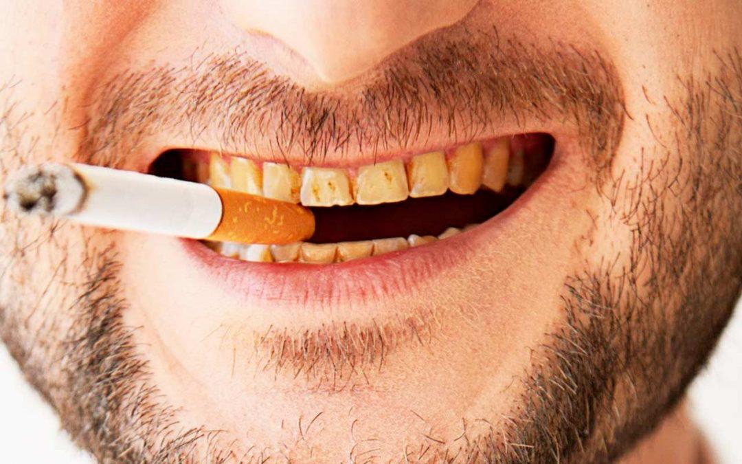 SI¡¡¡ el tabaco afecta tus dientes.